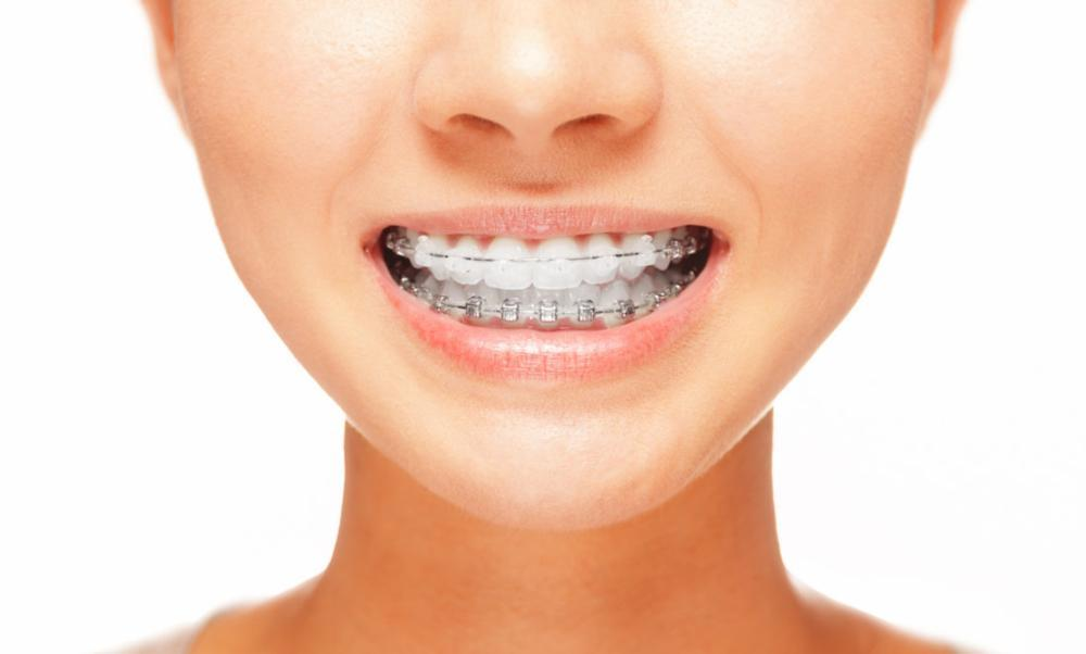 Orthodontics | Madera CA Cosmetic Dentist