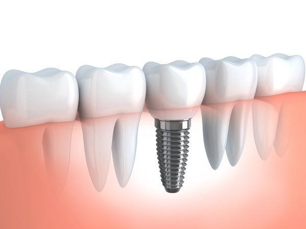 Dental Implant | Implant Dentist Madera, CA