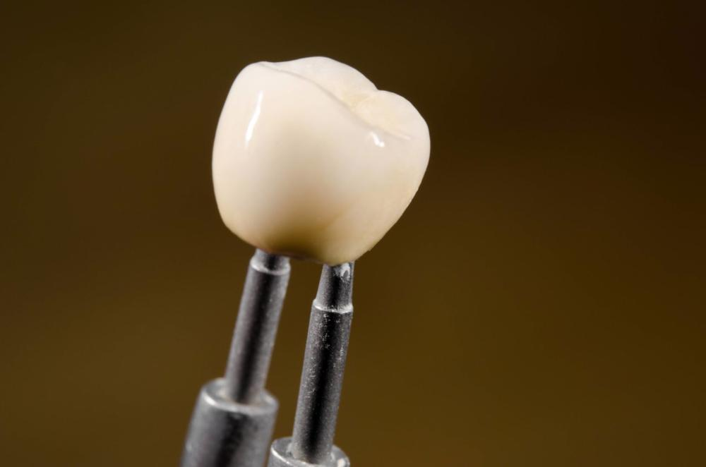 Dental Crown | Dentist Madera, CA