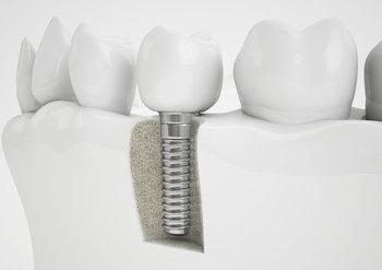 Dental Implant | Madera CA Dentist