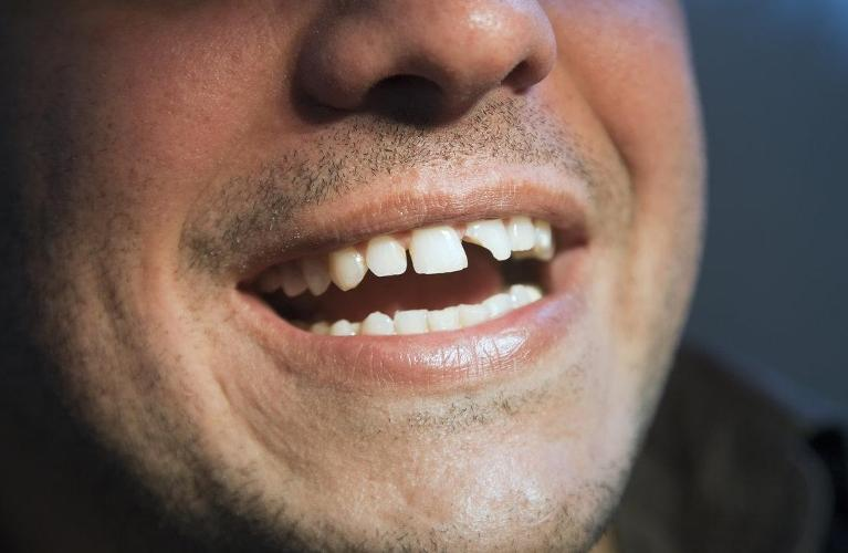 cracked front tooth | madera ca dentist
