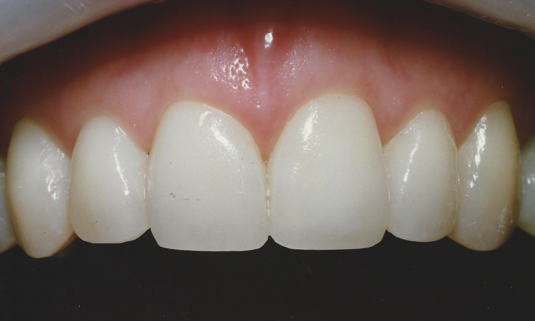 Fixing Dark Stained Teeth With Porcelain Dental Bonding | Madera CA Dentist