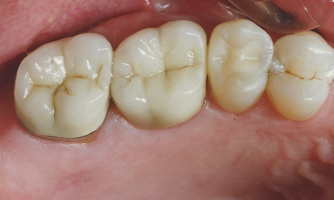 Replacing Silver Fillings With Tooth Colored Fillings | Madera CA Dentist
