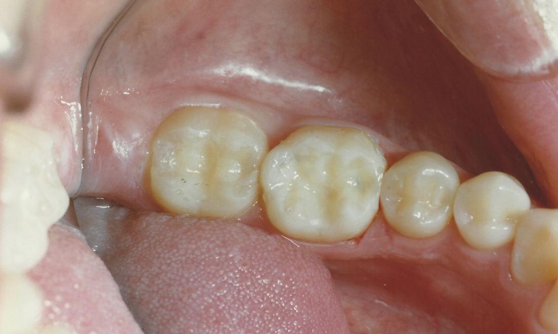 Replacing Silver Amalgam With Tooth Colored Fillings | Madera CA Dentist