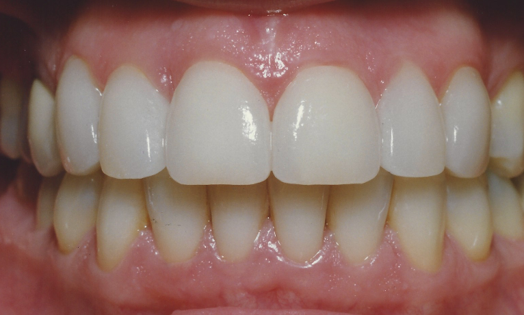 Porcelain Veneers To Fix Gaps In Teeth | Madera CA Dentist