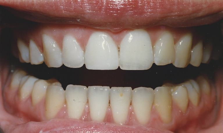 Dental Bonding to Fix Chipped Tooth