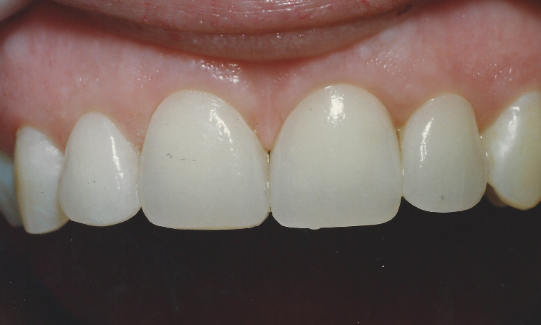 Veneers to Close Gaps in Front Teeth