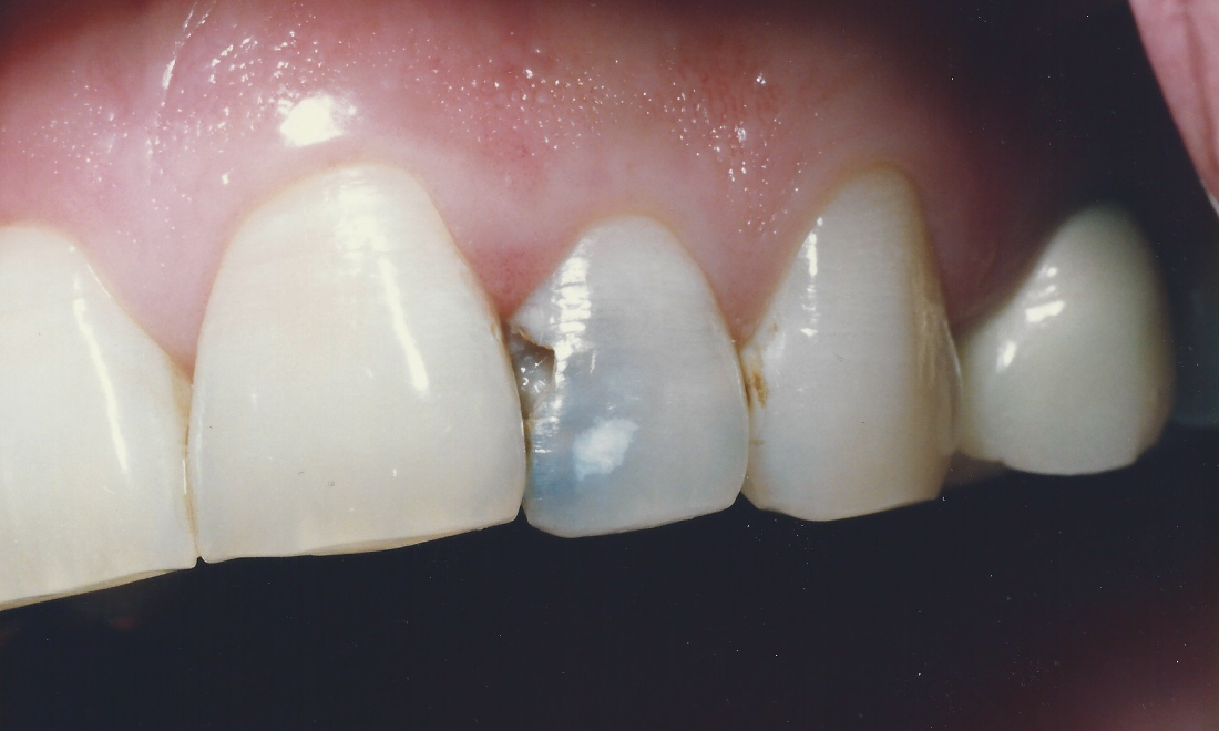 Dark And Discolored Chipped Tooth | Madera CA Dentist
