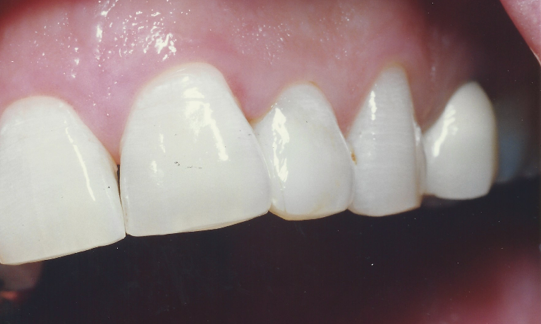 Tooth-Colored-Restorations-After-Image