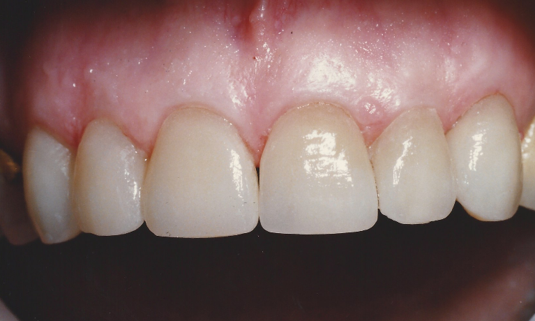 Smile-Makeover-with-Porcelain-Crowns-After-Image