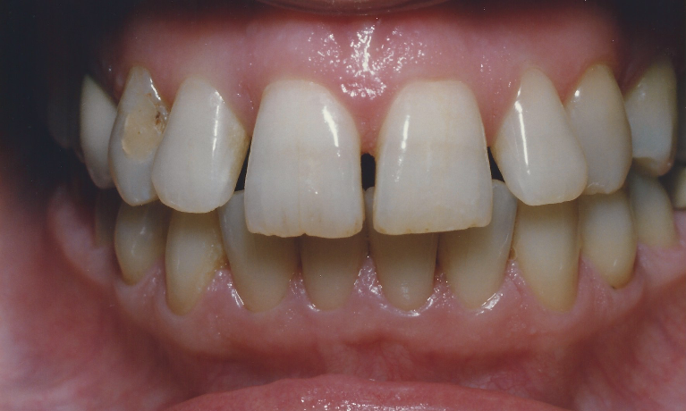 Smile-Makeover-with-Porcelain-Veneers-Before-Image