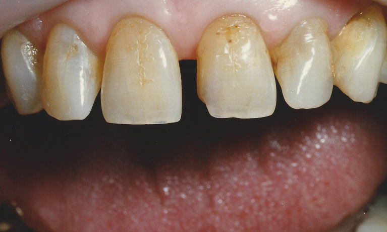 Smile-Makeover-with-Porcelain-Crowns-Before-Image