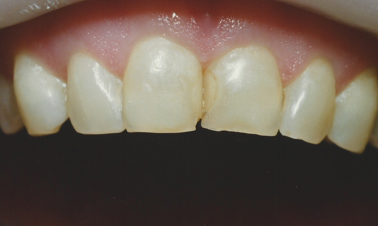 Brand-New-Smile-Before-Image