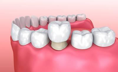 dental crown in madera ca