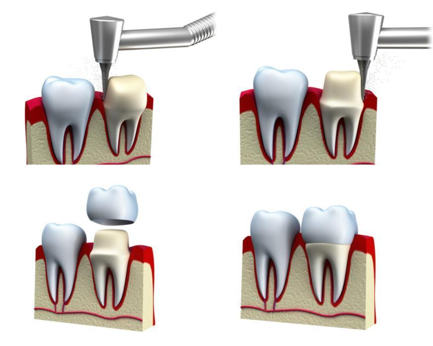 dental crowns | dentist madera ca
