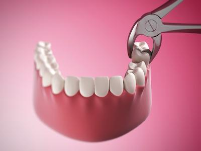tooth extractions in madera ca