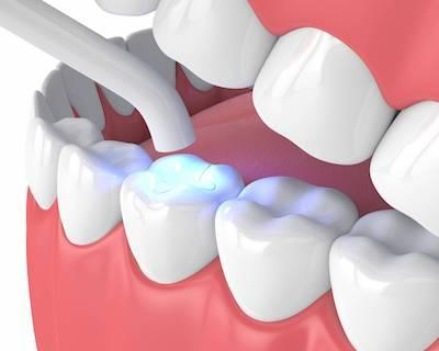 dental tooth fillings in madera ca