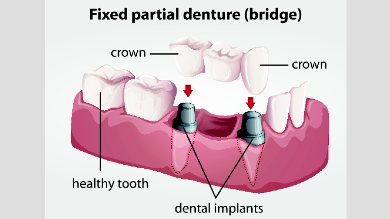 Dental Bridges Madera CA