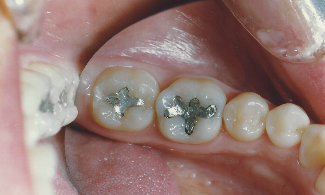 Silver Fillings In The Molars | Madera CA Dentist