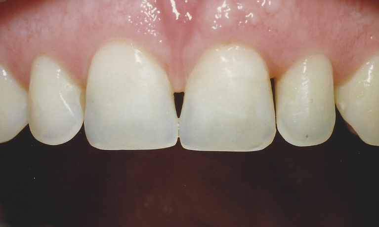 Veneers-to-Close-Gaps-in-Front-Teeth-Before-Image